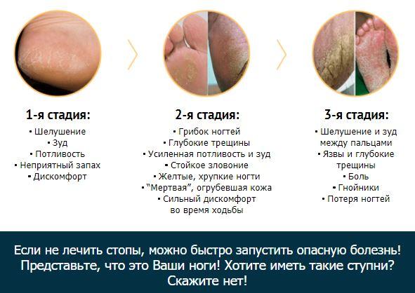 грибок между пальцев ног ванночка